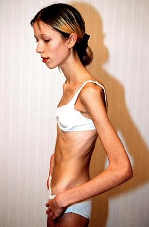 super thin girl anorexic