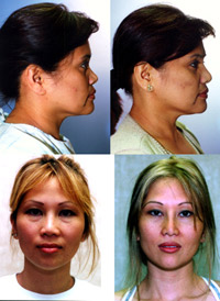 asian-rhinoplasty1