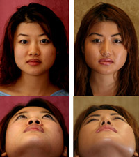 asian-rhinoplasty2